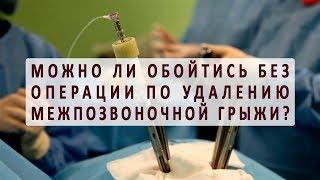 Можно ли обойтись без операции по удалению межпозвоночной грыжи?