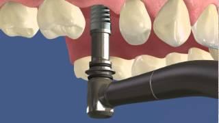 видео Протезирование зубов Краснодар