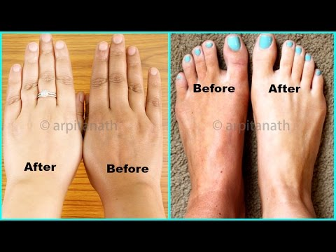 100% EFFECTIVE Hands & Feet Whitening Remedy ( With LIVE Demo )