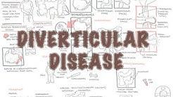 Diverticular Disease (diverticulitis) - Overview