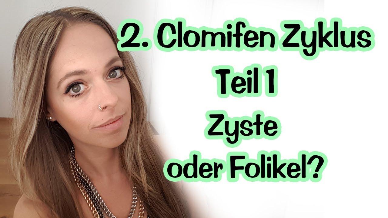 Clomifen Zyste