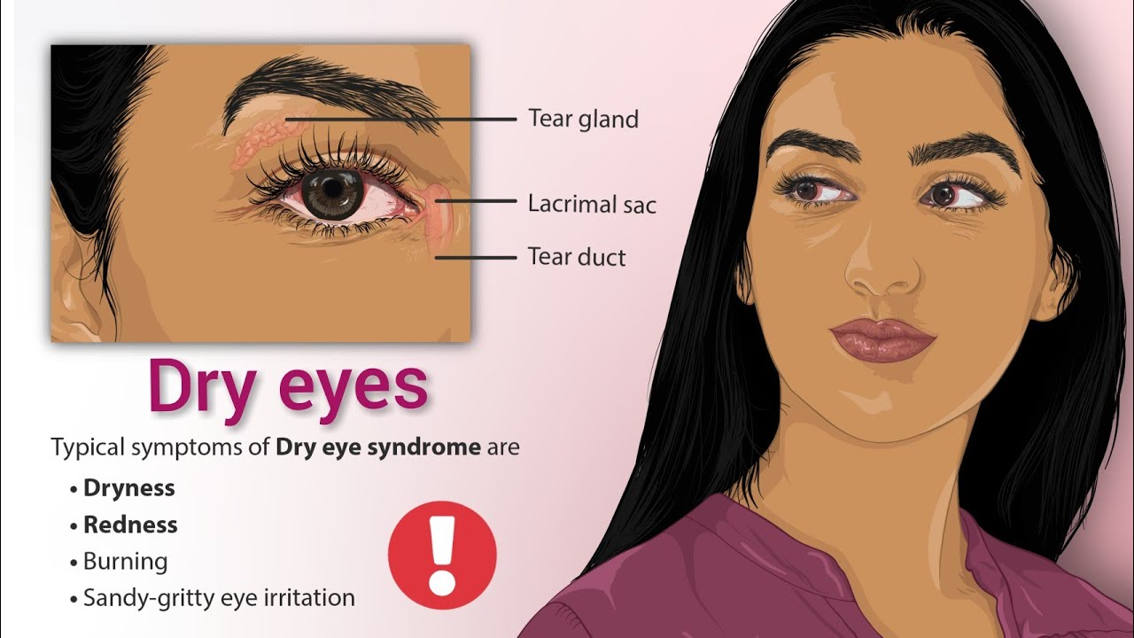 how to overcome dry eyes