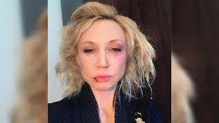 Что случилось с Кристиной Орбакайте? - Этого следовало ожидать!