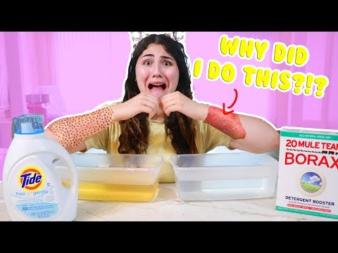I PUT MY ARM IN BORAX WATER AND TIDE! DON'T DO THIS AT HOME