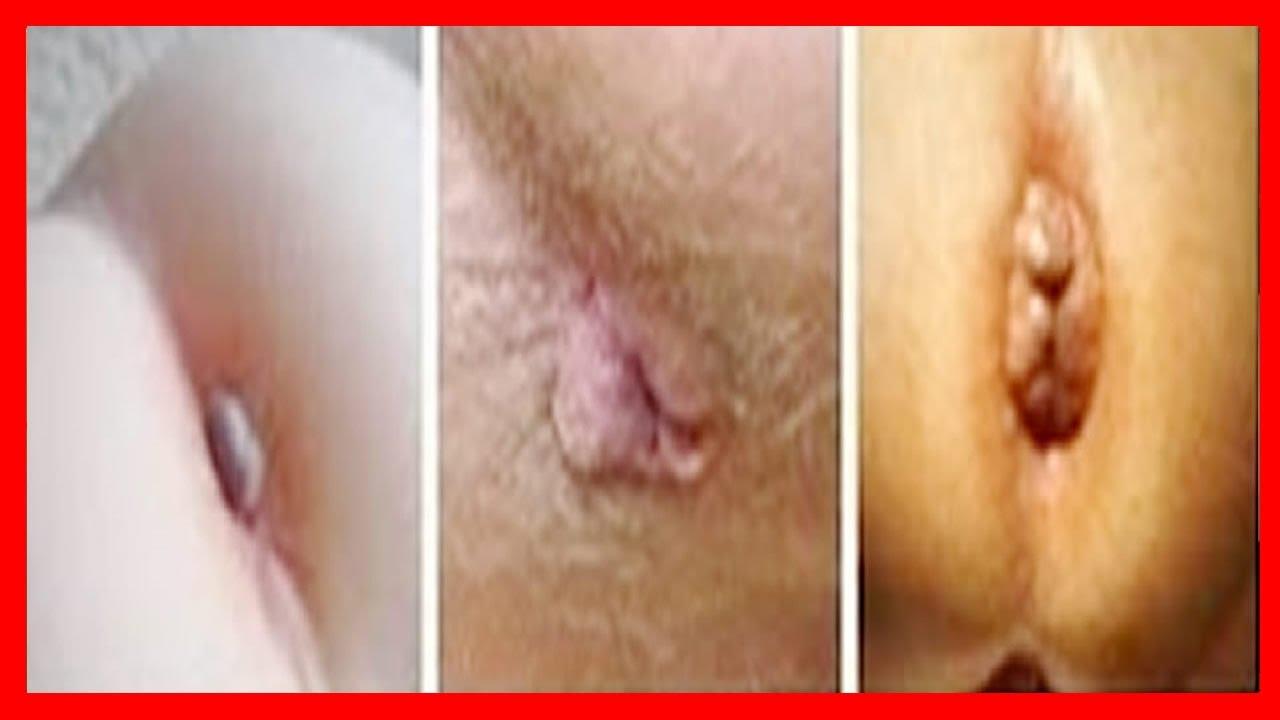 Los tratamientos varikoza de las venas los métodos públicos del tratamiento