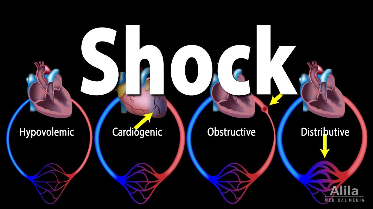Image result for clinical signs of  shock  no copyright