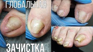 Зачистка ногтей на ногах Возрастной педикюр Скрученные ногти