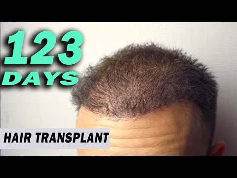 FUE Hair Transplant Day 123 (post op) Istanbul, Turkey GROWTH STAGE