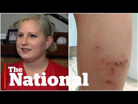 Bed bug infestation on British Airways flight a nightmare for passengers