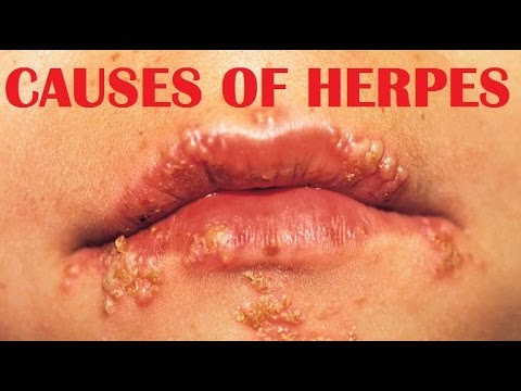 what is a herpes virus