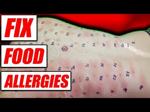 Food Allergies | How To Fix & Diagnose Them