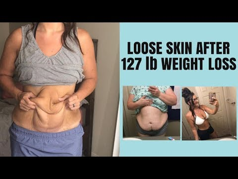 Loose Skin After 130 Pound Weight Loss