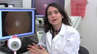 What research is under way to improve glaucoma treatment?