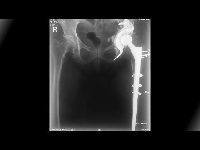 Αναθεώρηση αρθροπλαστικής ΑΡ ισχίου - Δρ Ροϊδης Νικόλαος
