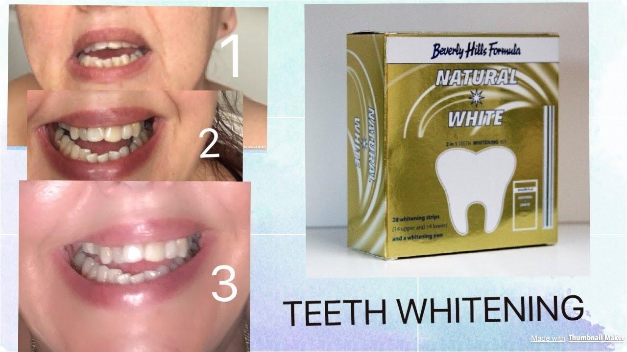 Testing Teeth Whitening Strips Youtube