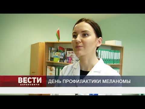 Чем опасна меланома и как распознать первые признаки заболевания