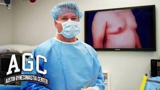 Gynecomastia Liposuction vs Excision - Westlake Plastic Surgery
