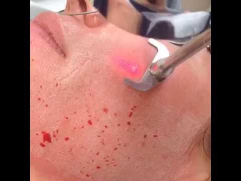 Sciton ProFractional Skin resurfacing