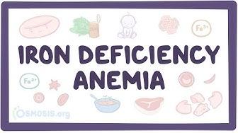 Iron deficiency anemia - causes, symptoms, diagnosis, treatment, pathology