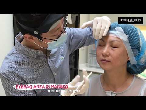 Non-Surgical Eyebag Removal at Cambridge Medical