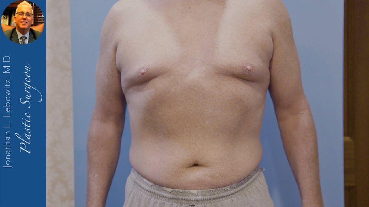 California Patient For Male 4D HI-DEF VaserLipo Gynecomastia Surgery By Dr. Lebowitz, Long Island NY