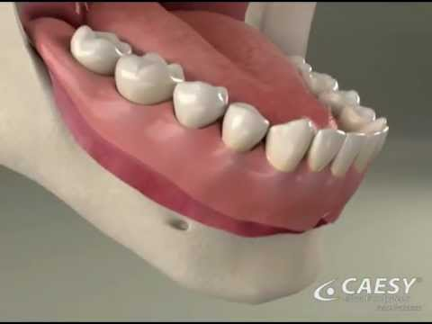 Dentures adjust reline roseville dentist youtube dentures adjust reline roseville dentist solutioingenieria Image collections