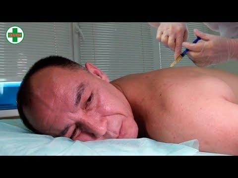 Избавиться от боли в спине поможет метод Плазмолифтинга. Лечение позвоночника