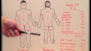 Burn Percentages - Anatomy Lecture for Medical Students - USMLE Step 1