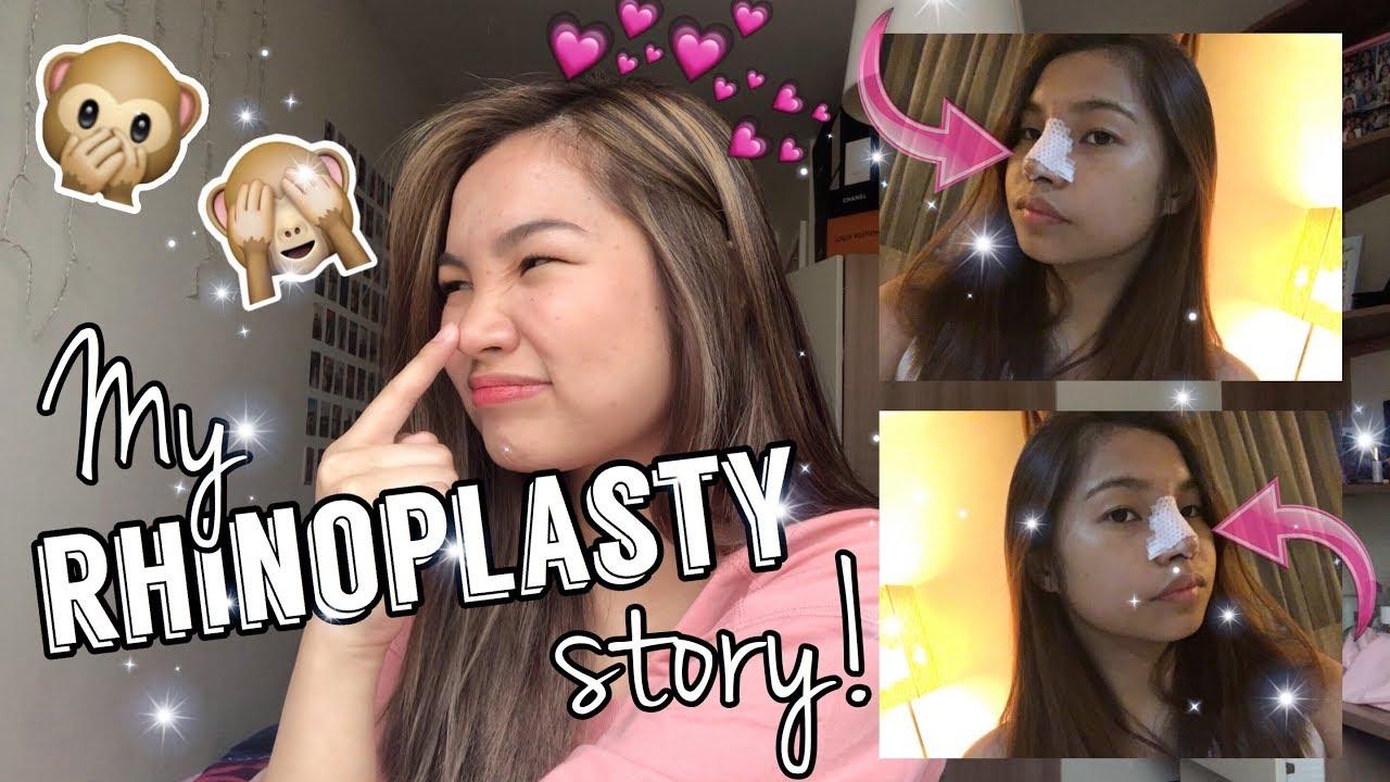 My Rhinoplasty Story | Plastic Surgery!? | Kyra Valentin