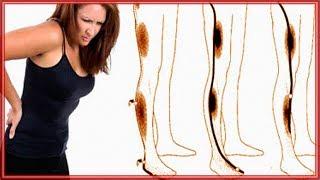 ♦♦Скачать Бесплатные уроки по лечению ущемления седалищного нерва