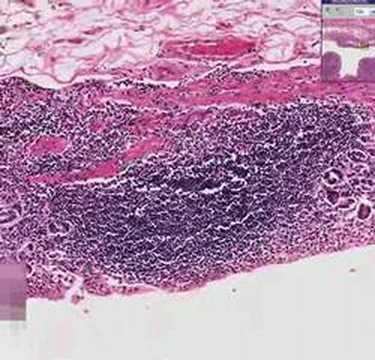 Histopathology Stomach--Chronic gastritis