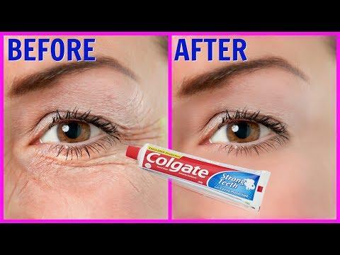 Colgate सिर्फ 1मिनट में आपके चेहरे की झाइयां व झुर्रियों को इतनी तेजी से गायब कर देगा | 100% कामयाब