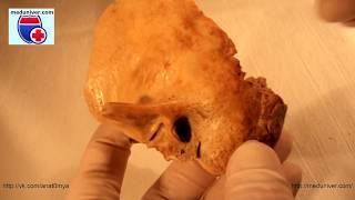 Анатомия височной кости (os temporale) - meduniver.com