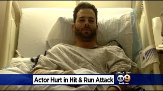 Actor/Model Attacked While Trying To Bring Thanksgiving Dinner To Friend