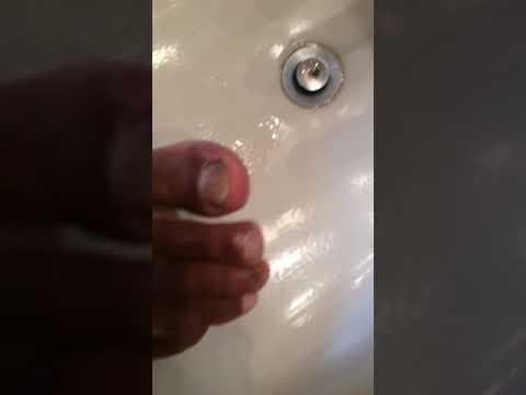 Killing toenail fungus with apple cider vinegar