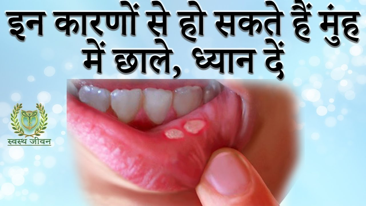 Image result for मुंह में छाले