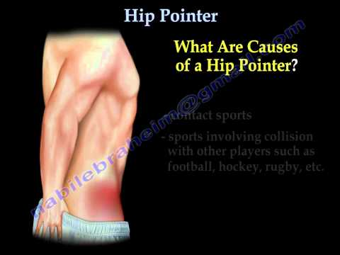 Hip Pointer Everything You Need To Know Dr. Nabil Ebraheim