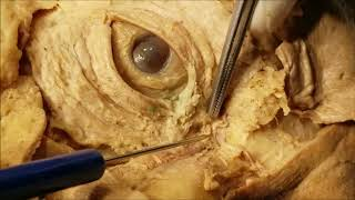 Palpebral and Lacrimal Apparatus Dissection – Clinical Demonstration – Sanjoy Sanyal