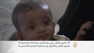 30% نسبة سوء التغذية الحاد بين الأطفال اليمنيين