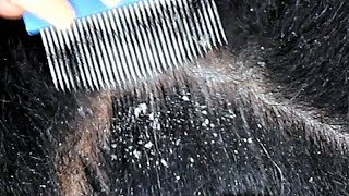 DANDRUFF SCRATCHING ASMR using lice comb and nails | Dandruff up close SCALP SCRATCHING Sounds