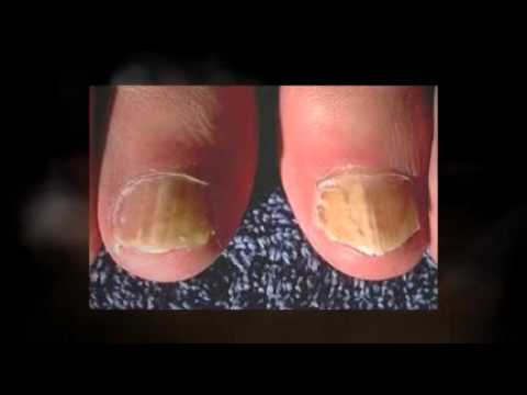 Tea Tree Oil for Nail Fungus Does it Work.mp4