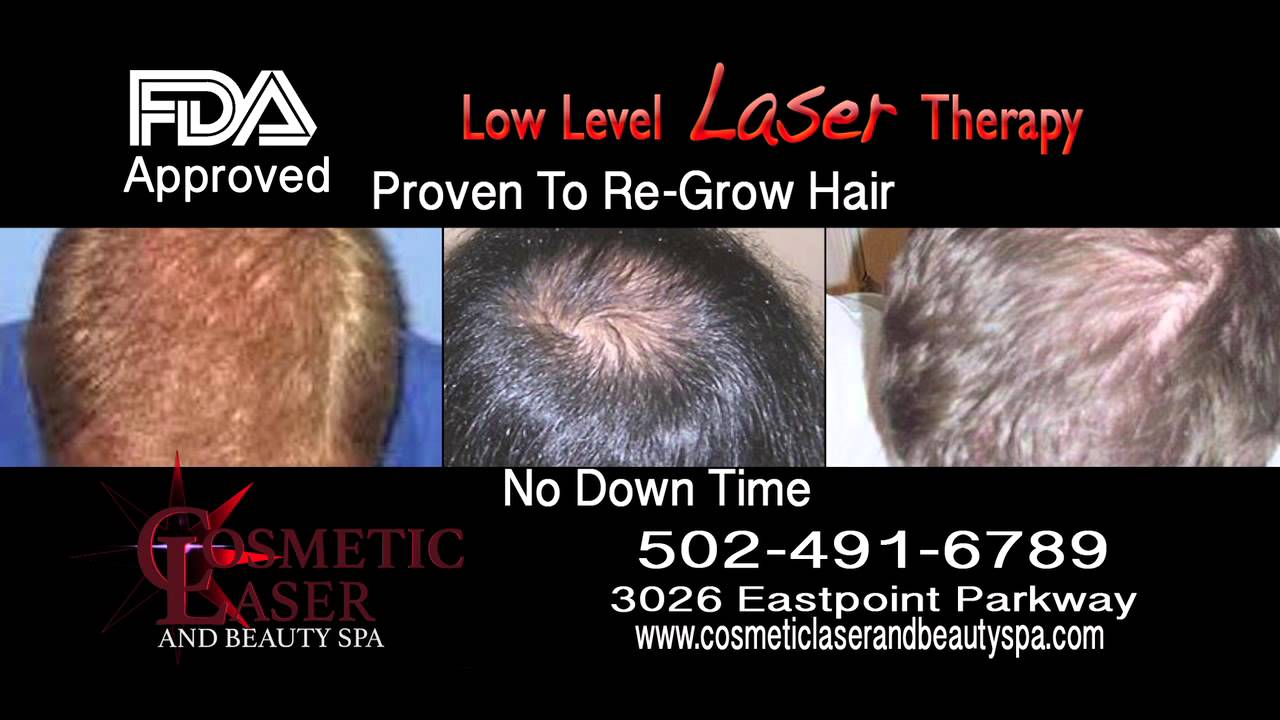 hair loss Louisville
