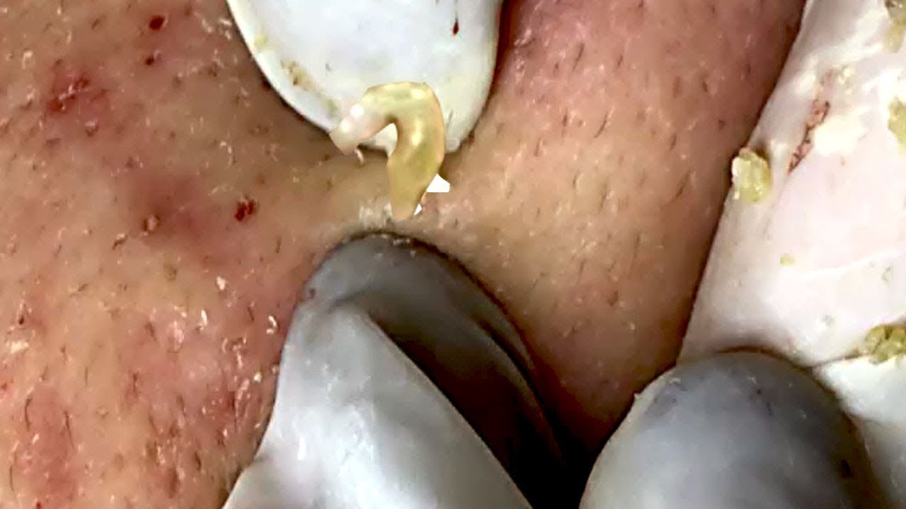 The Best of Blackheads Extraction on Face HD Part 3