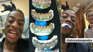 Download BOONK GANG REMOVES GOLD TEETH  FOR A SERIOUS UPGRADE Mp3 and Videos