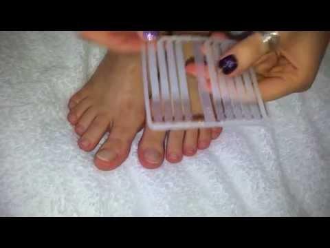 Лак от грибка ногтей: обзор препаратов и отзывы
