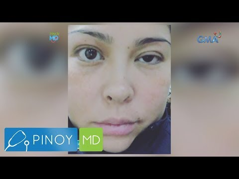 Pinoy MD: A survivor&39;s journey: Actress Angelu de Leon&39;s fight with Bell's Palsy