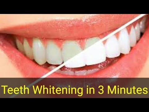 Teeth Whitening At Home In 3 Minutes   How to Clean Teeth At Home Just 3 Minutes   100% Effective