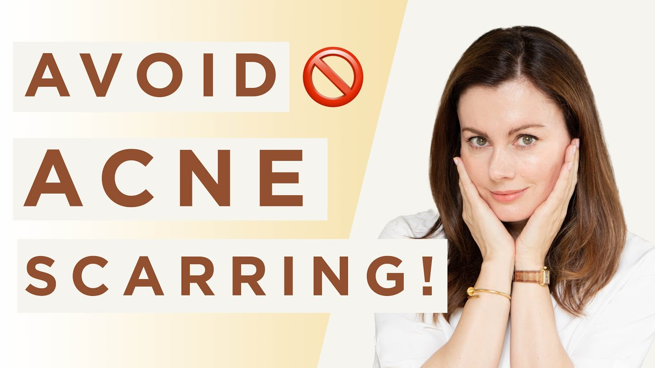 How to Prevent Acne SCARS | Dr Sam Bunting