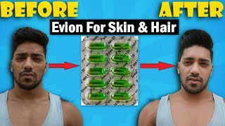 Evion 400 : Uses & Side Effect  for Skin & Hair Routine | 100% Results