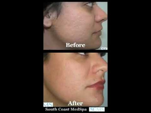 Acne Scar Removal Before And After For Hispanic Skin Youtube